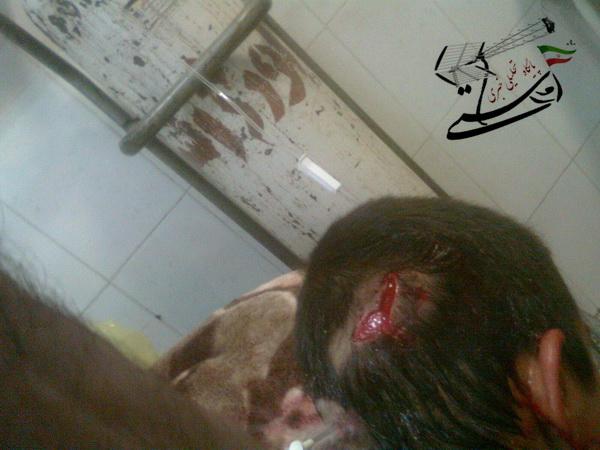حمله سگ ولگرد به پسر بچه 10 ساله در رفسنجان + عکس