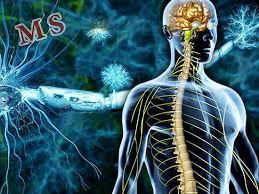 210 مورد بیماری ام اس در رفسنجان شناسایی شدند