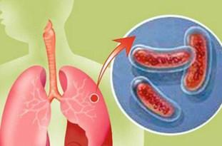 ۳۶ بیمار مبتلا به سل در رفسنجان وجود دارد/ارائه خدمات رایگان به مبتلایان به سل